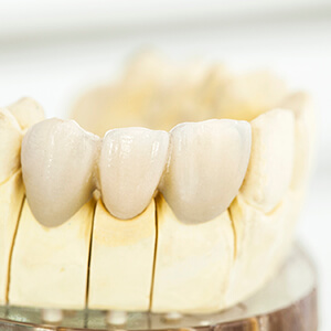 Ceramic model of dental crown supported bridge