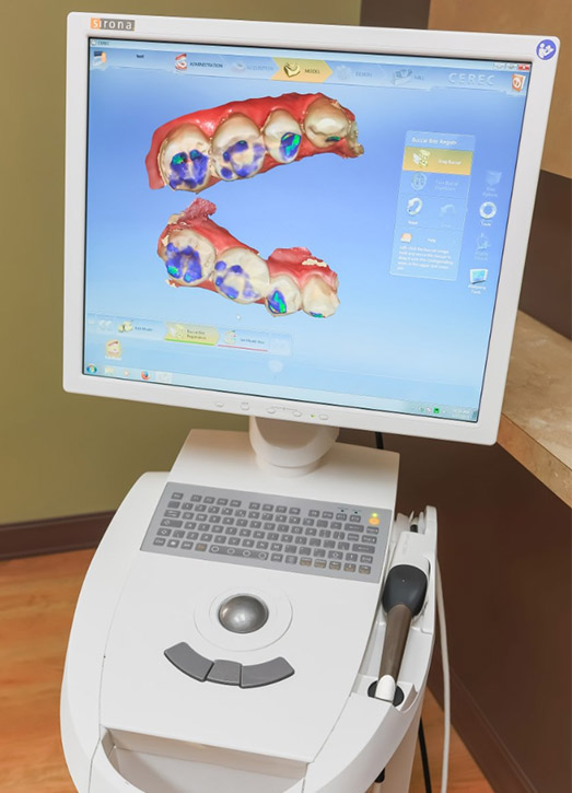 Digital rendering of teeth by Cerec software