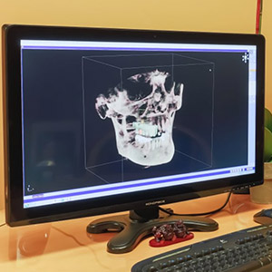3D x-ray of jaw on chairside monitor