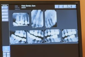 Digital x-rays of teeth on computer monitor