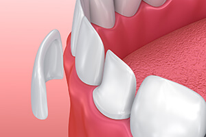 Closeup animation of porcelain veneer treatment