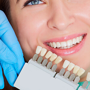 Patient comparing teeth with teeth color chart
